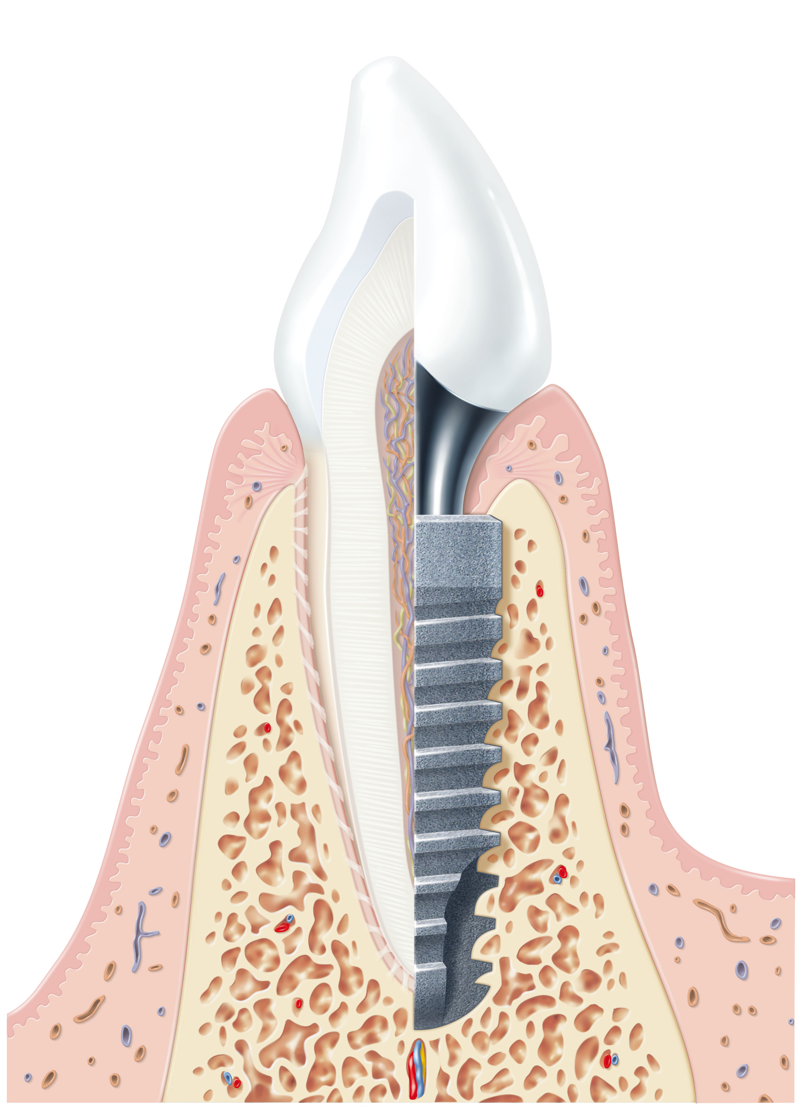 Oral implantology implant dentistry